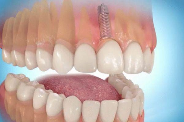 Лазерная имплантация зубов что это такое