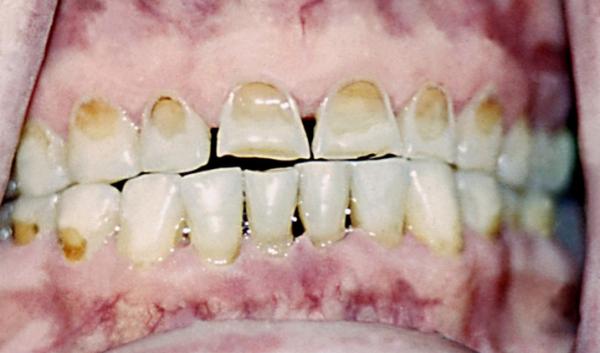 Некроз твердых тканей зубов