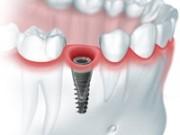 Противопоказания к одномоментной имплантации зубов