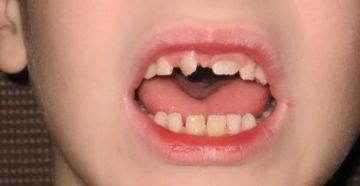 Тортоаномалия зубов и способы ее лечения