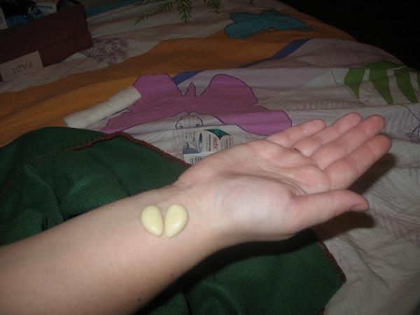 Чеснок на запястье от зубной боли отзывы