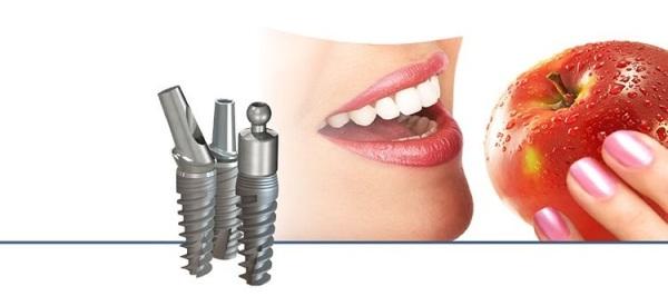 Стоимость коронки и абатмента на имплант impro