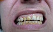 Некроз тканей зуба