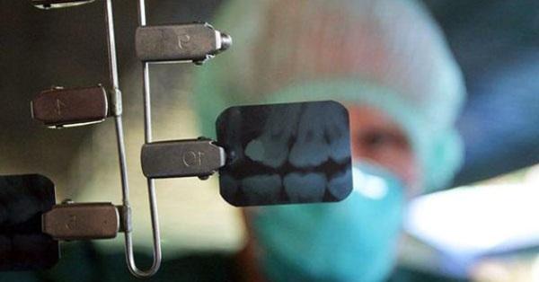 Делали рентген зубов на первой неделе беременности