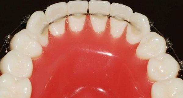 Бесплатная консультация детского ортодонта