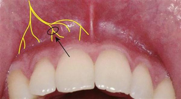Инфильтрационная анестезия в стоматологии методика проведения