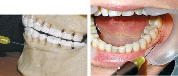 Инфильтрационная анестезия в стоматологии что это