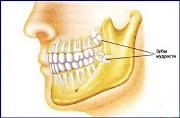 Нужны ли зубы мудрости или лучше удалить