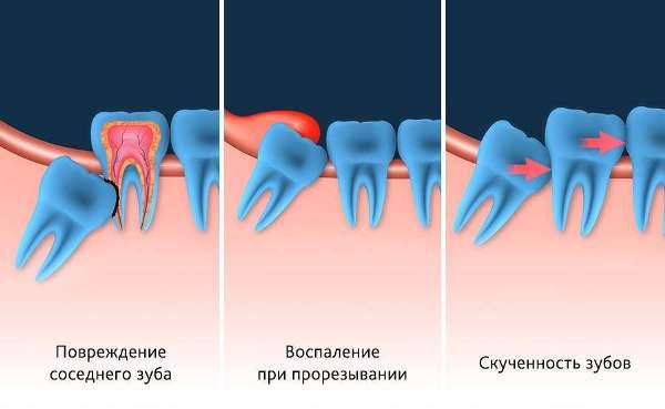 Нужно ли лечить верхний зуб мудрости или удалить