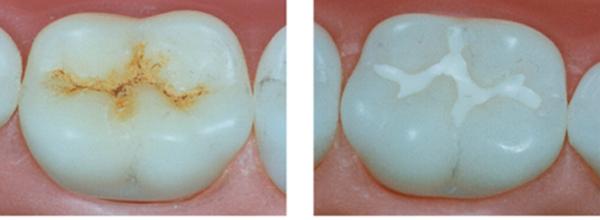 Установка и замена пломбы на передний зуб цена
