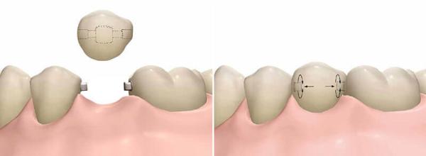 Методы протезирования зубов без обточки цена