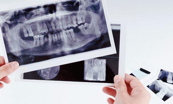 Протезирование зубов без обточки цены