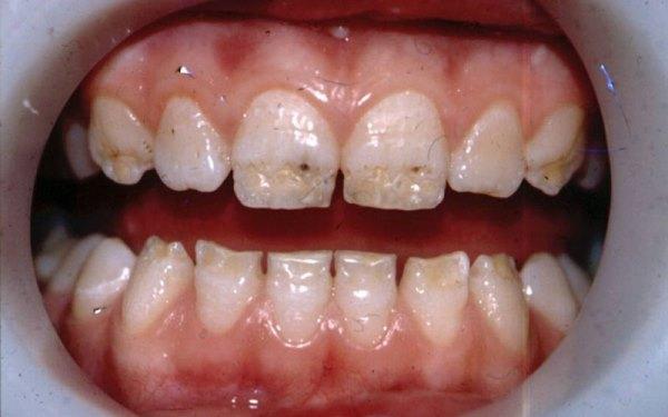 Некариозные поражения зубов классификация по Патрикееву