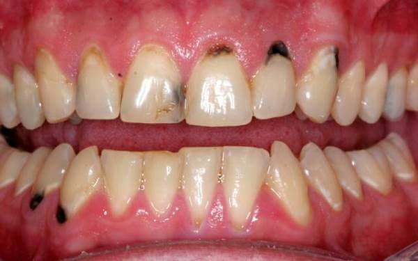 Классификация некариозных поражений зубов по мкб 10