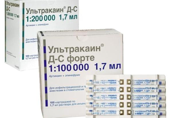 Ультракаин в карпулах аналоги для стоматологии