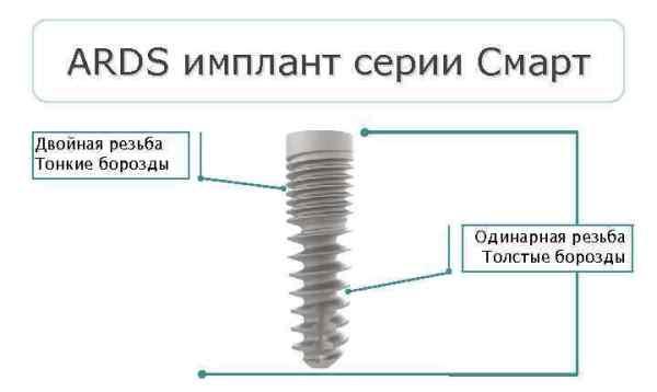 Модель Смарт