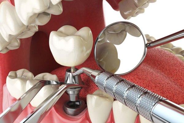 Время приживления зубного импланта