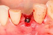 Последствия имплантации зубов