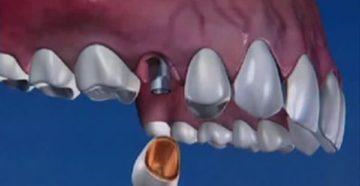 Частота долгосрочного отторжения зубного импланта