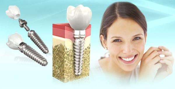 Имплантация зубов памятка после операции