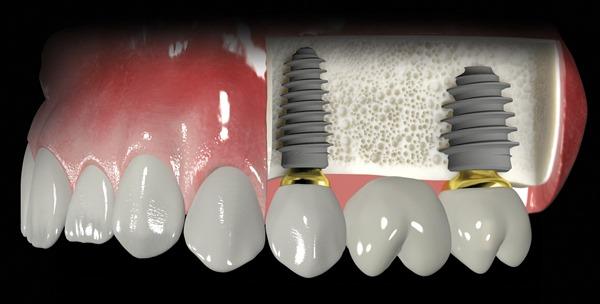 Симптомы отторжения зубного импланта