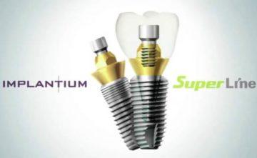 Плюсы и минусы имплантов SuperLine