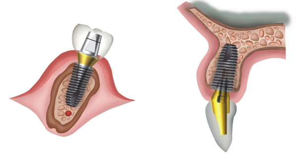 Superline импланты отзывы