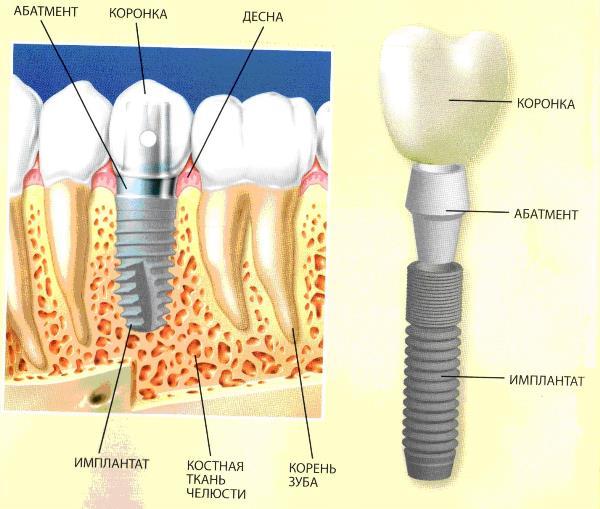Приживление зубных имплантов