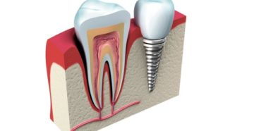 Есть ли ограничения к имплантации без костной пластики