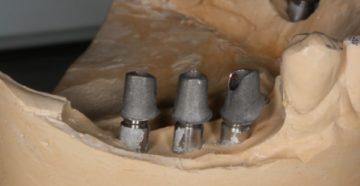 Материал, используемый при изготовлении индивидуального абатмента
