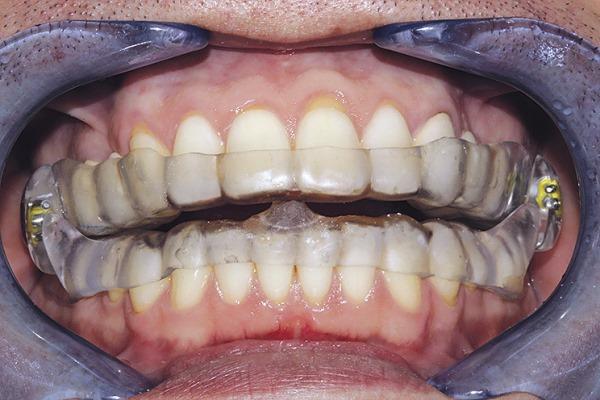Сплинт терапия в стоматологии цена