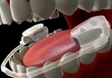 Сплинт терапия в стоматологии и используемые устройства