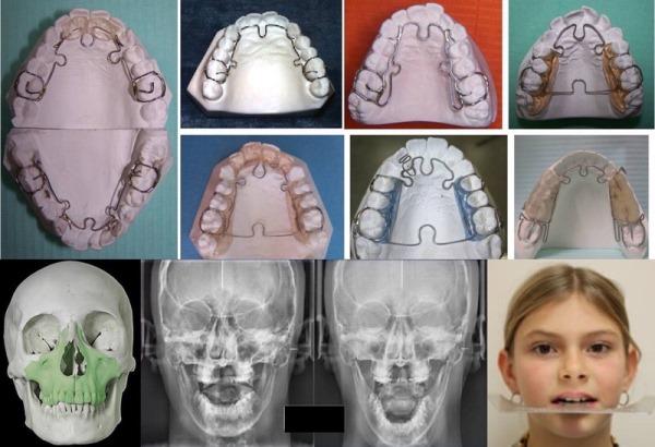 Alf система по ортодонтии