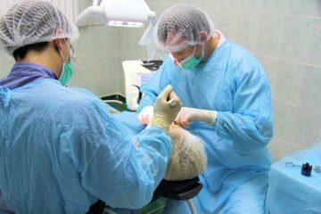 Показания и противопоказания к чрезкостной имплантации