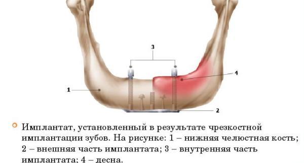 Системы имплантов
