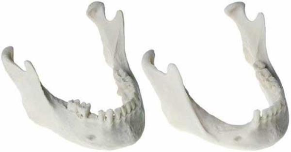 Требования к состоянию челюстной кости