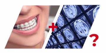 Когда недопустимо прохождение МРТ пациенту с брекетами
