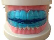 Ортодонтический трейнер для зубов