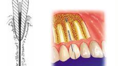Применение эндодонтически стабилизированных имплантатов