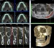 Имплантация зубов 3d особенности