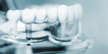Что такое 3d имплантация зубов