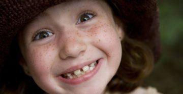 Как выровнять зубы подростку в домашних условиях