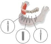 особенности комбинированных имплантатов