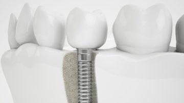 Преимущества и недостатки компрессионной имплантации зубов
