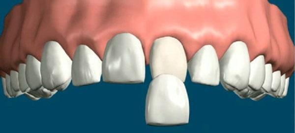 Выровнять зубы без брекетов в домашних условиях