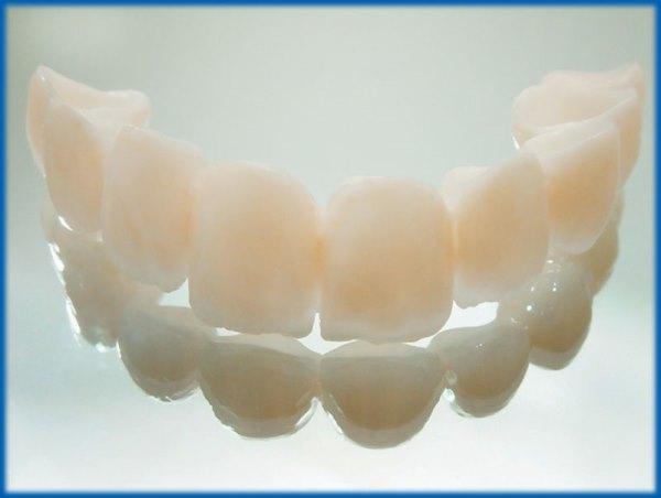 Недорогие зубные протезы несъемные