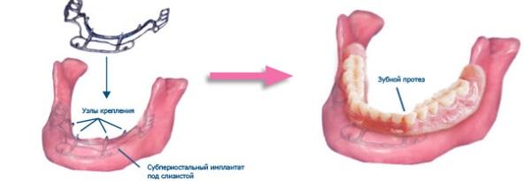 Поднадкостничные имплантаты