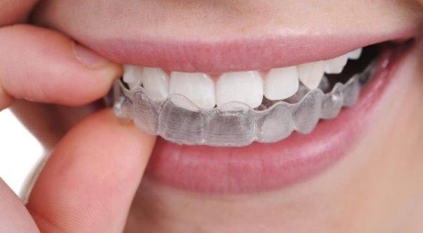 Можно ли выровнять зубы в домашних условиях