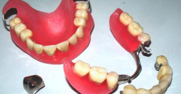 Возврат денег за протезирование зубов пенсионерам