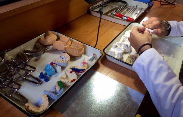 Клинико лабораторные этапы изготовления паяного мостовидного протеза